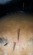 FacialAcupuncture1