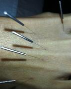 FootAcupuncture1
