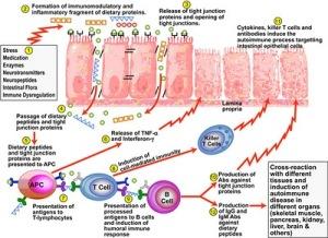 pathogenesis_autoimmune_leaky gut